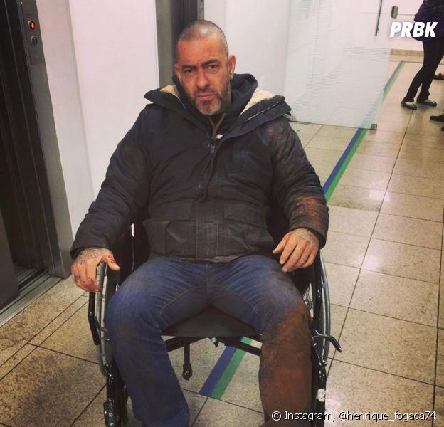 """Henrique Fogaça, do """"MasterChef"""", cai de moto e fratura costelas"""