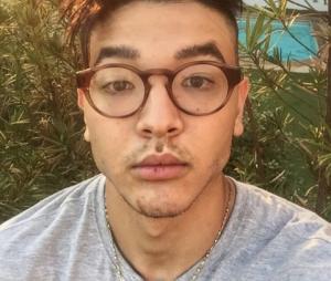 Fãs de Japa desconfiam que youtuber fez plástica no rosto