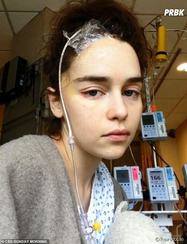 """Emilia Clarke, de """"Game of Thrones"""", divulga fotos do período em que esteve internada"""