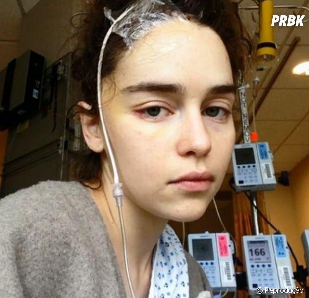 """Emilia Clarke, de """"Game of Thrones"""", publicou fotos do período que passou internada por causa de dois aneurismas"""