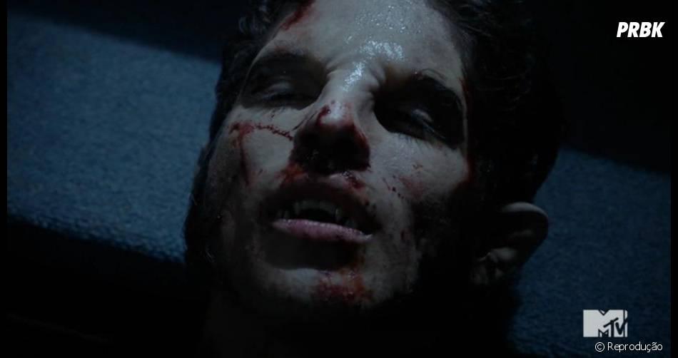 """Scott (Tyler Posey) quase morreu em """"Teen Wolf"""""""