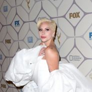 Lady Gaga posta foto no Instagram e anima fãs com possível retorno à música em 2016!