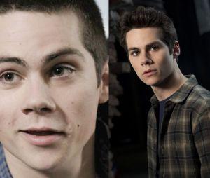 """De """"Teen Wolf"""": Stiles (Dyan O'Brien) na 1ª e 6ª temporada"""
