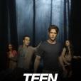 """É fã de """"Teen Wolf"""", da MTV? Então essa foi mole!"""