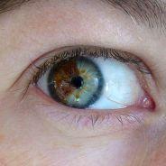 Laser promete mudar a cor dos olhos castanhos para azuis e pode ser aplicado por 5 mil dólares