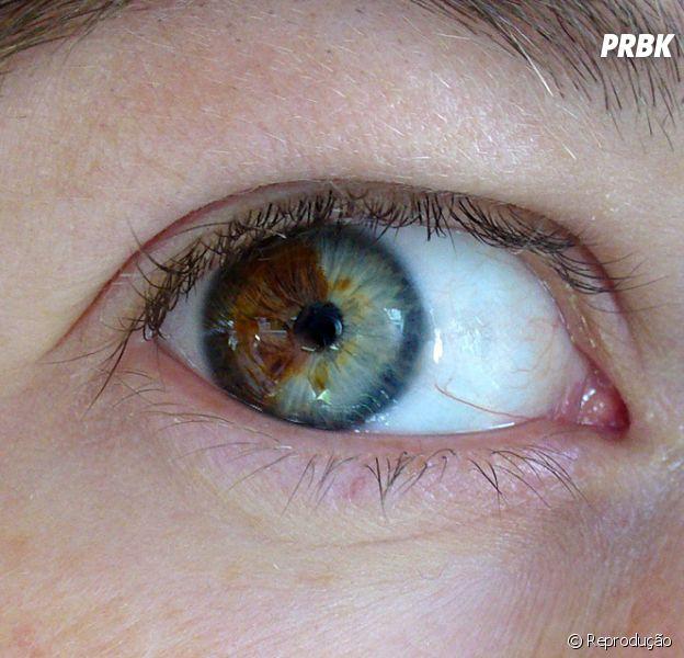 Laser retira pigmento dos olhos e transforma castanho em azul