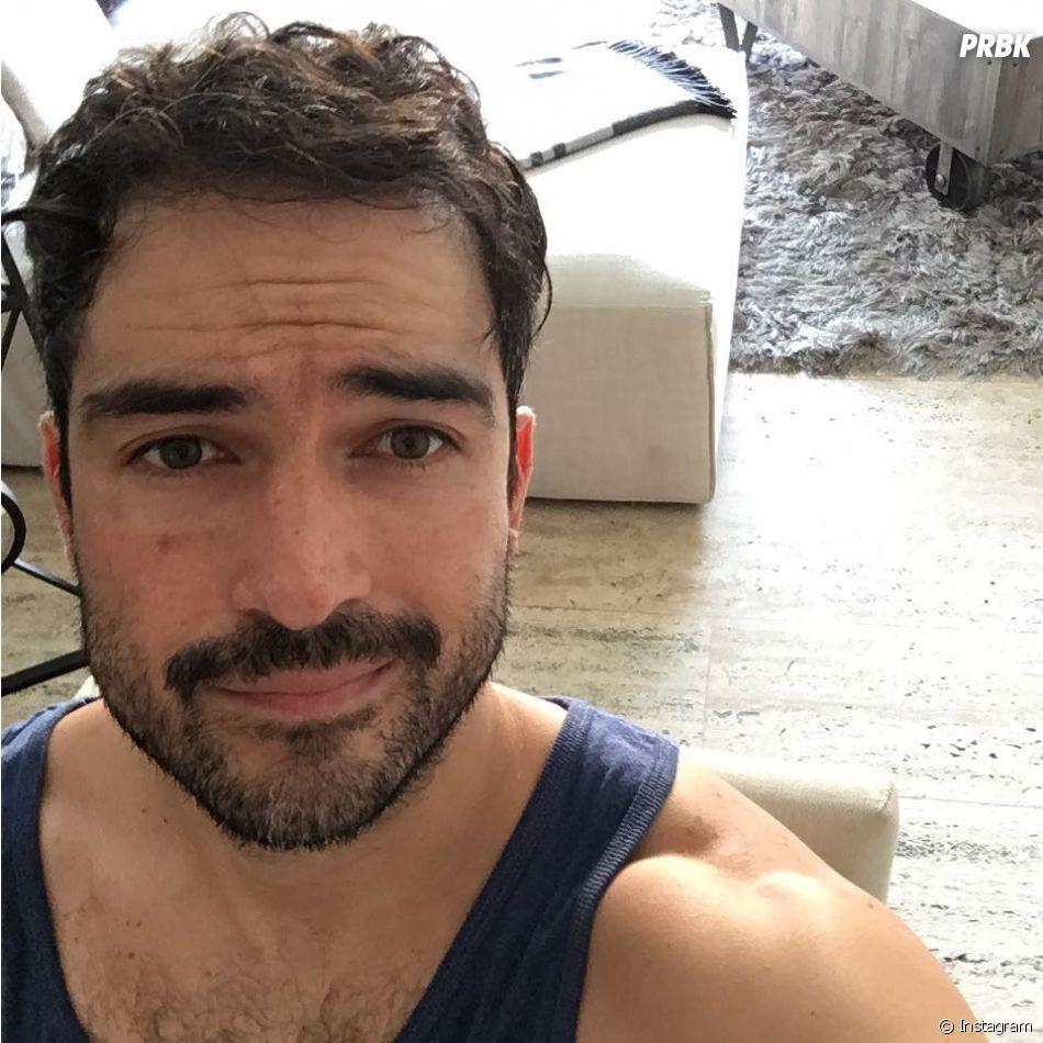 Alfonso Herrera é lindo com e sem bigode!
