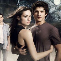 """Em """"Teen Wolf"""": veja 8 provas de que a primeira temporada da série foi completamente trash!"""