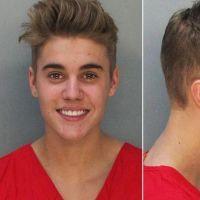 """Justin Bieber faz brincadeira com antes e depois e relembra prisão: """"O melhor ainda está por vir"""""""