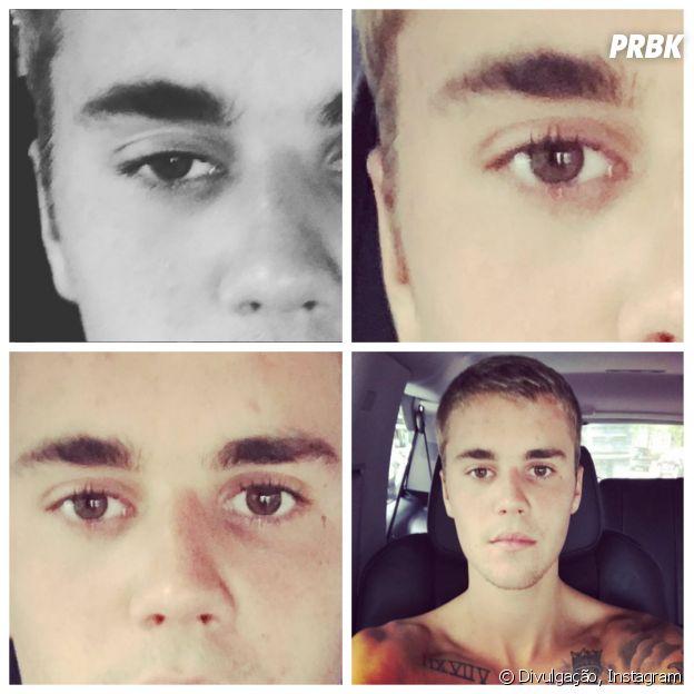 Sequência de fotos enaltecendo a conjuntivite do Justin Bieber