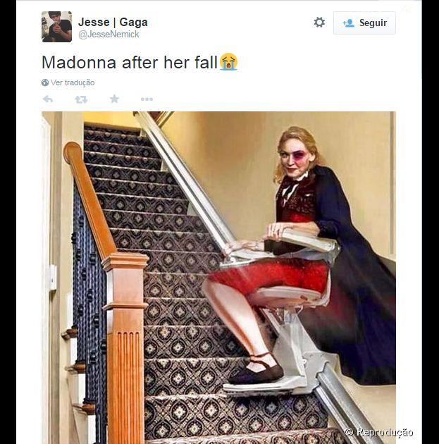 Depois de cair da escada, Madonna vai precisar de ajuda daqui pra frente