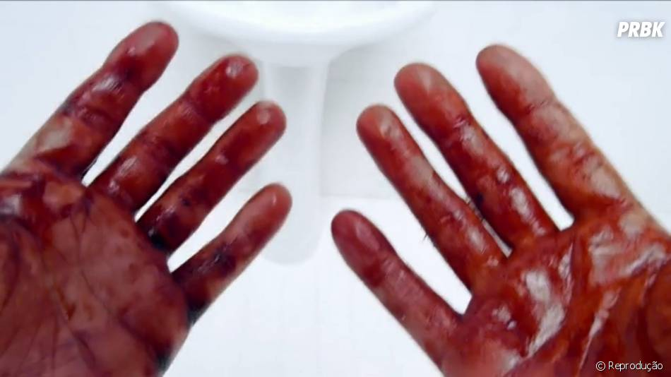"""As mãos de Stiles (Dylan O'Brien) aparecem ensanguentadas na nova promo de """"Teen Wolf"""""""