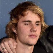Justin Bieber é processado por usar ofensa racista durante briga com homem!