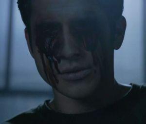 "No último episódio de ""Teen Wolf"", Scott (Tyler Posey) arranca seus próprios olhos para derrotar Anuk-Ite"
