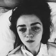 """Em """"Game of Thrones"""": na 6ª temporada, cegueira de Arya prejudica Maisie Williams nas gravações!"""