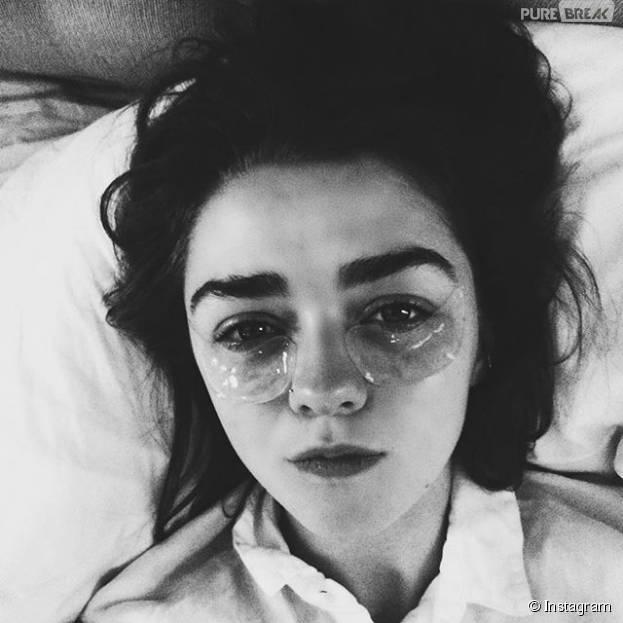"""Maisie Williams, a Arya de """"Game of Thrones"""", está com os olhos inflamados por causa das lentes de cegueira da personagem"""