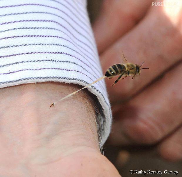 Momento exato de abelha picando o braço de uma pessoa